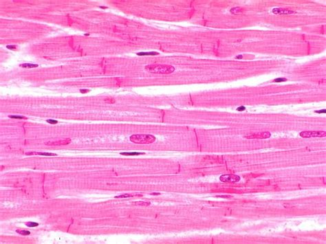cardiac muscle cells are picture 11
