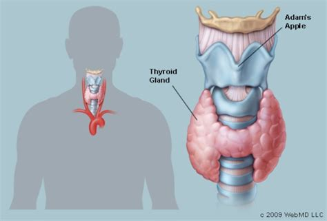 where's hypothyroidism located on the picture 1