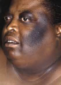 pictures of hiv skin disorders picture 6