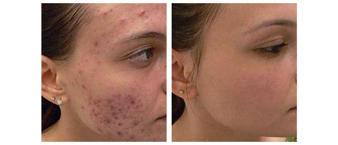 information about acne picture 6