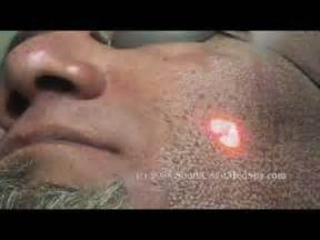 remove acne scars with laser picture 5
