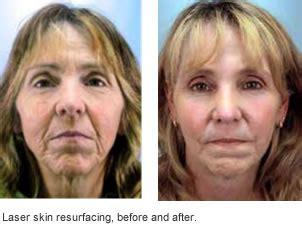 co2 laser versus dermabrasion for acne scars picture 3