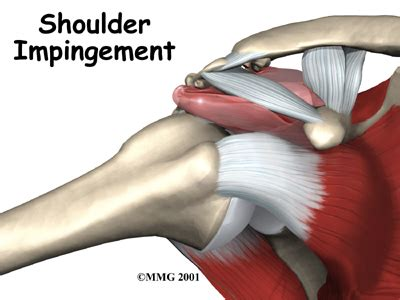 joint impingement syndrome picture 9