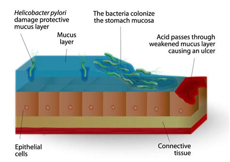 cause of bacterial infection in the stomach picture 21