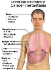 el cancer symptoms disorder picture 14