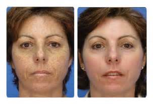 dermalogica skin care picture 14