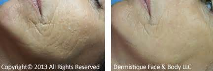before and after pictures of dermaplaning picture 6