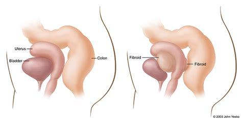 fibroid pressing on bladder picture 1