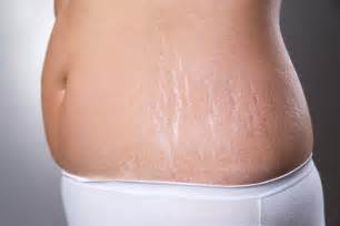 aveeno to remove stretch marks picture 1