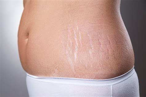 cost to remove stretch mark picture 1