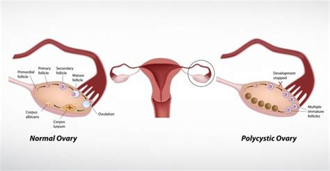 mvunguti can help ovarian cyst picture 13