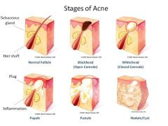 best treatment for acne caused by tamoxifen picture 13