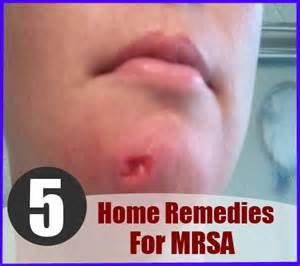 mrsa treatment picture 3