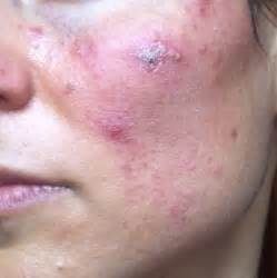 doxycycline for acne picture 9