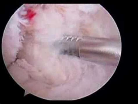 cyclops lesion knee joint picture 6