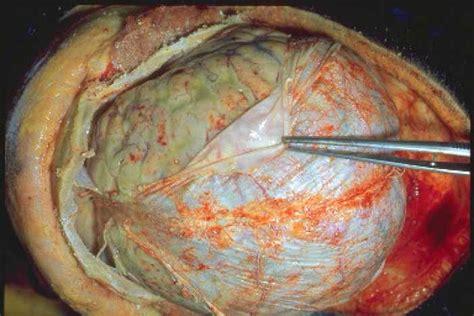 left side of brain bacterial meningitis caused hole picture 1