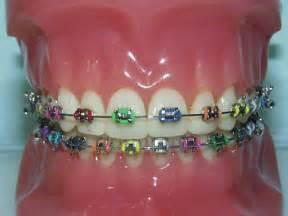 braces on interior h picture 2
