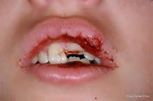 children and trauma to teeth picture 3