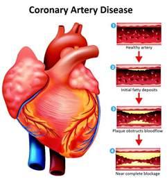 coronary heart disease picture 2