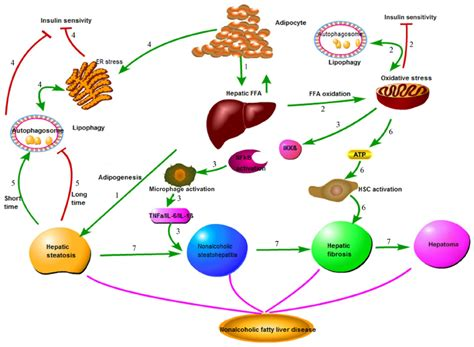 full cirrhosis of the liver picture 9