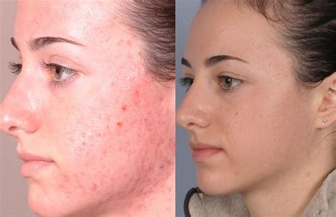 salysilic acid acne facial peel picture 2
