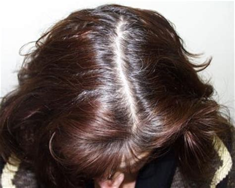 correct hair thinning in women picture 9
