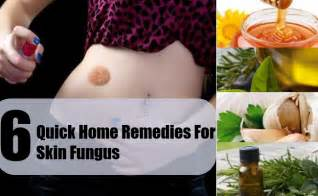 cures for skin fungus picture 11
