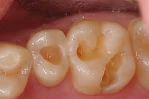tooth filling with calcium picture 3