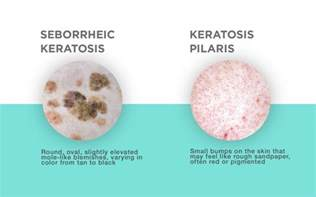 what naturally disolves keratin in tumors picture 10