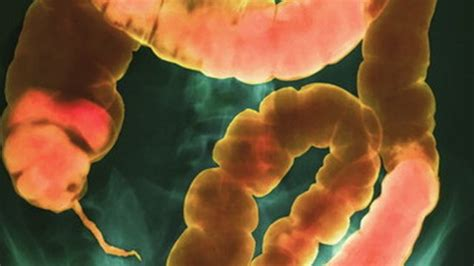 colon infections picture 3