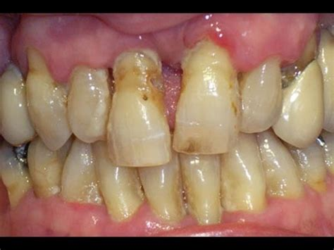 can a bad tooth cause you to have picture 1