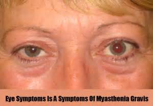 muscle eye problems picture 1