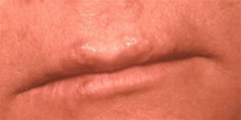 what is herpes simplex picture 17