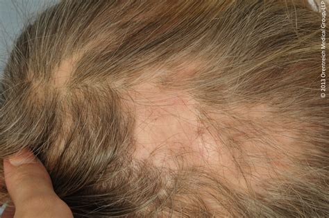 scalp hair loss due to mrsa picture 3