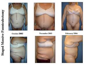 average weight loss after tummy tuck picture 3