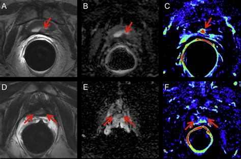 endo mri in recurring prostate cancer after radical prostatectomy picture 1