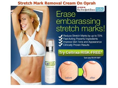 oprah-stretch marks picture 5