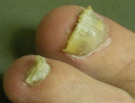 toenail fungus treatment vinegar picture 10