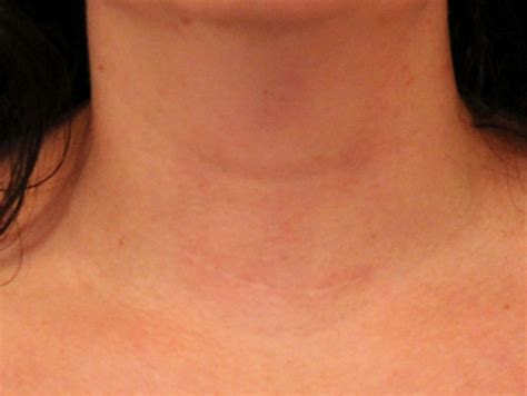 thyroid incision picture 6