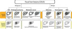focal lesions in the liver are consistent with picture 13