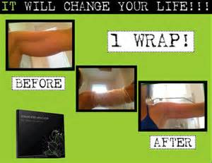 stretch mark before and after picture picture 1