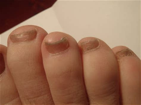 pictures ol toe fungus picture 7
