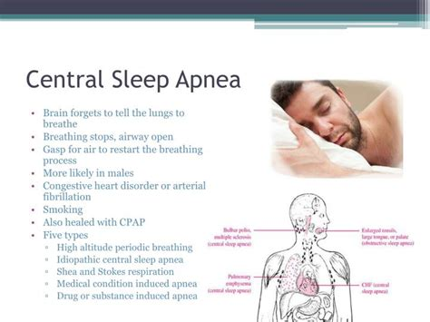 central sleep apnea picture 1