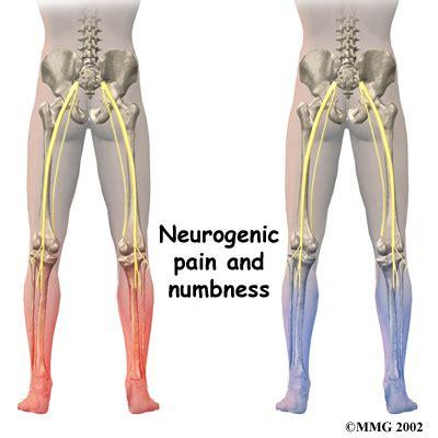 back ache leg pain picture 15