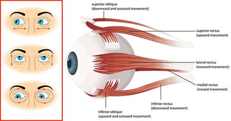 double vision eye muscle surgery picture 5