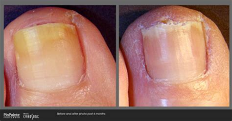 pinpointe footlaser orange county, california picture 5