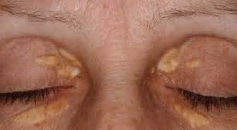 skin growths near eyes picture 6