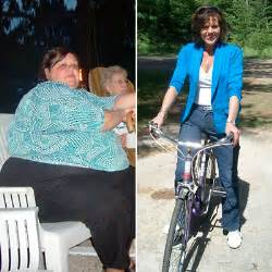 bariatric weight loss without the surgery picture 3