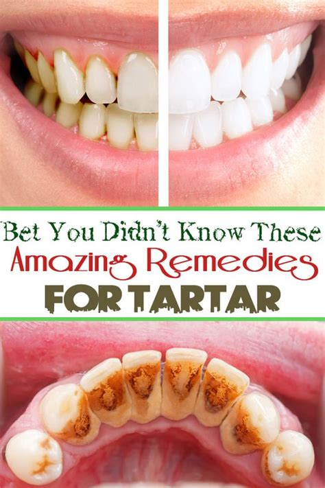 herbal supplements for plaque build up on teeth picture 2