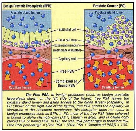 yananow prostate picture 2